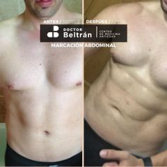 Abdominoplastia - Doctor Beltrán