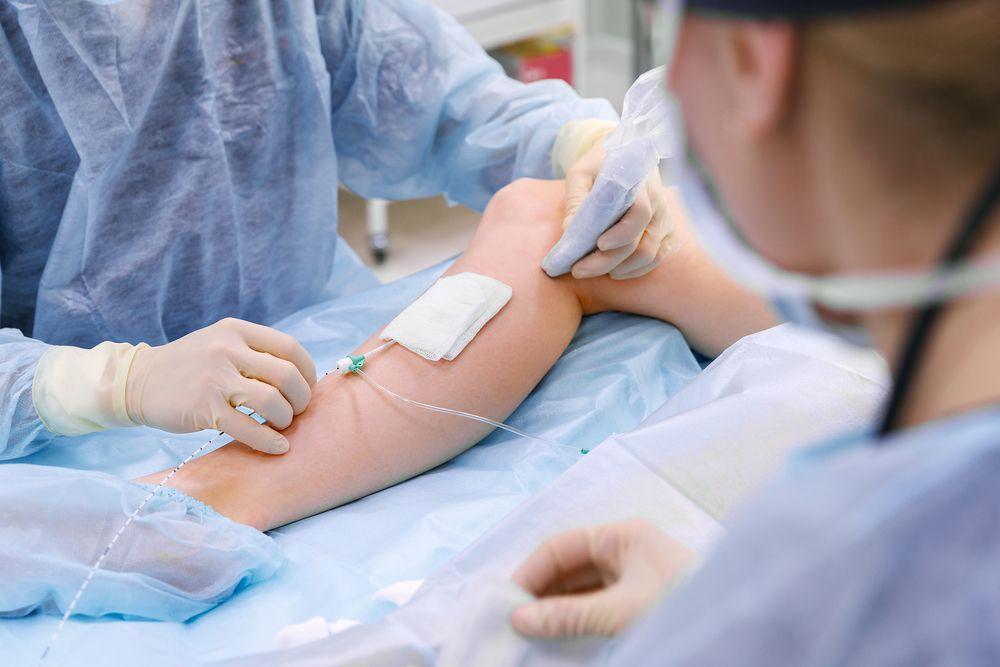 Opération de la sclérose des varices