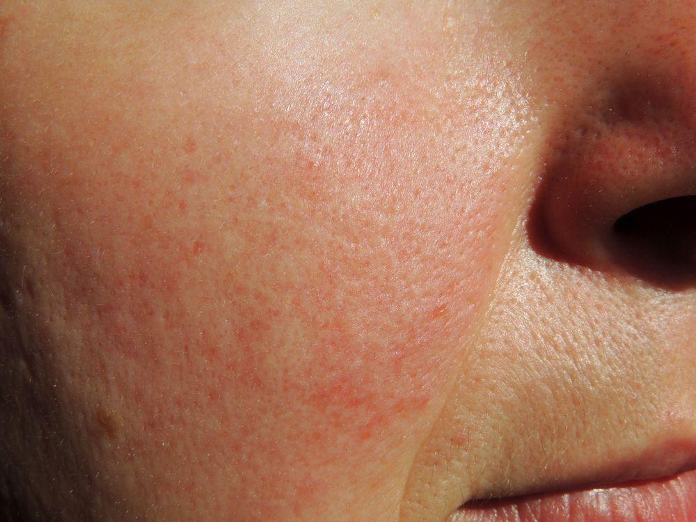 rosacée, affection de la peau