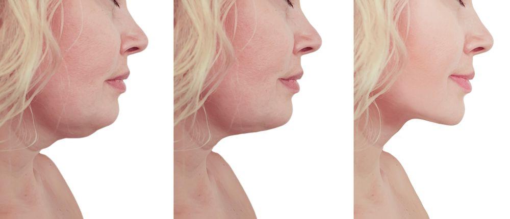 la liposuccion du visage