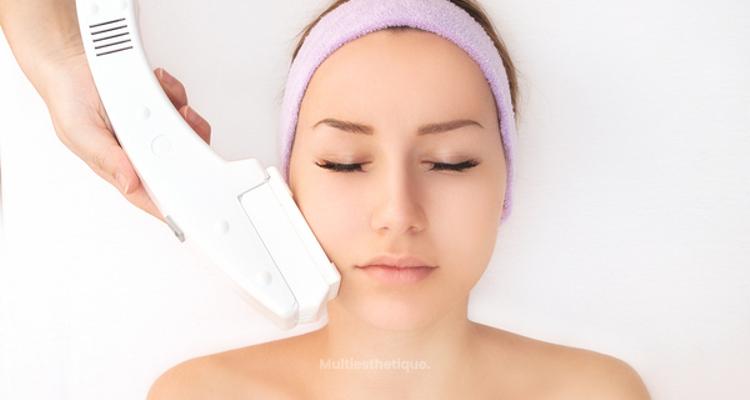 Prévenir et traiter les taches pigmentaires