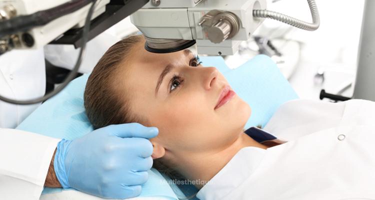La chirurgie laser des yeux