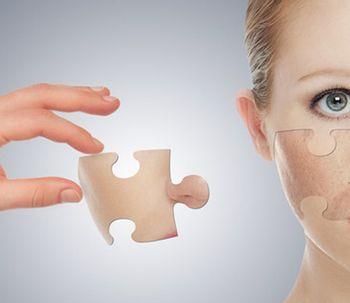 Le laser utilisé pour le détatouage pourrait réduire l'acné