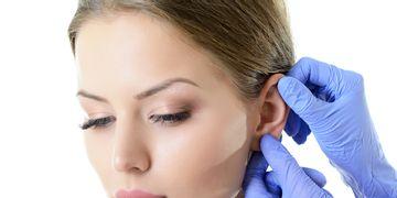 Otoplastie : tout savoir sur la chirurgie des oreilles