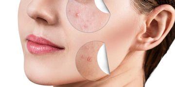 Les types d'acné et leur traitement