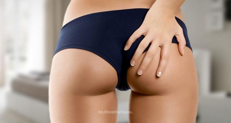 Trois façons d'obtenir des fesses à la brésilienne