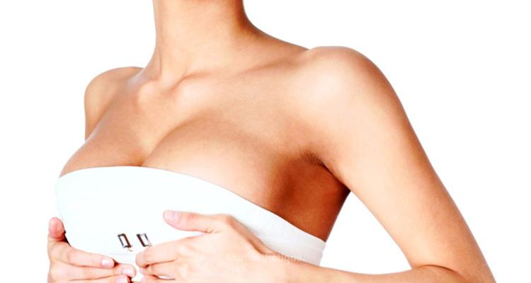 Les implants mammaires, au-dessus ou en-dessous du muscle ?