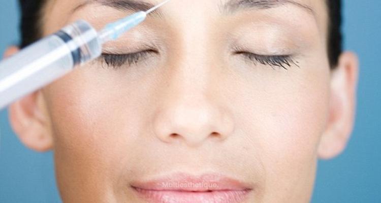 10 choses à savoir sur le Botox