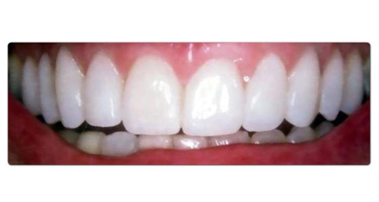 Le botox peut traiter le sourire gingival