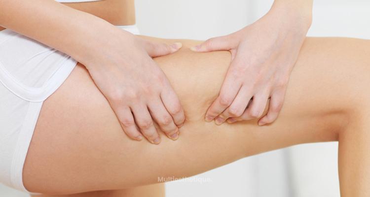 Tout savoir sur la cellulite