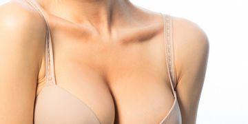 Le soutien-gorge interne, un autre type d'implant mammaire