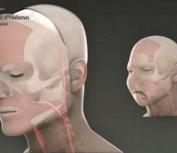 Première greffe du visage complète réalisée à Barcelone