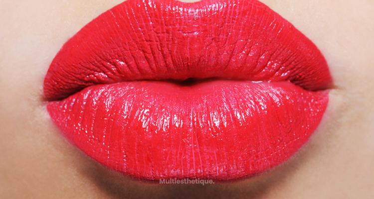 Remodelage des lèvres, questions fréquentes