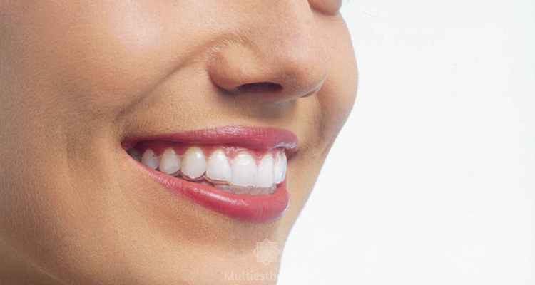 L'orthodontie invisible et amovible