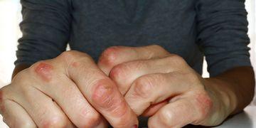 L'eczéma est-il lié au stress ?