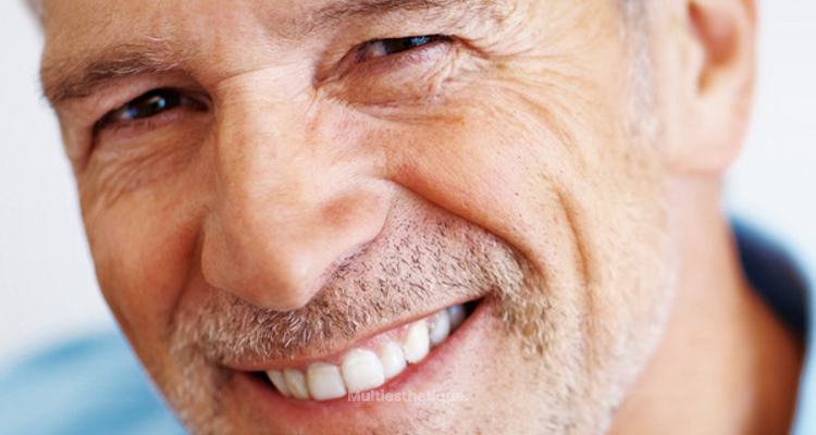Votre guide sur les implants dentaires