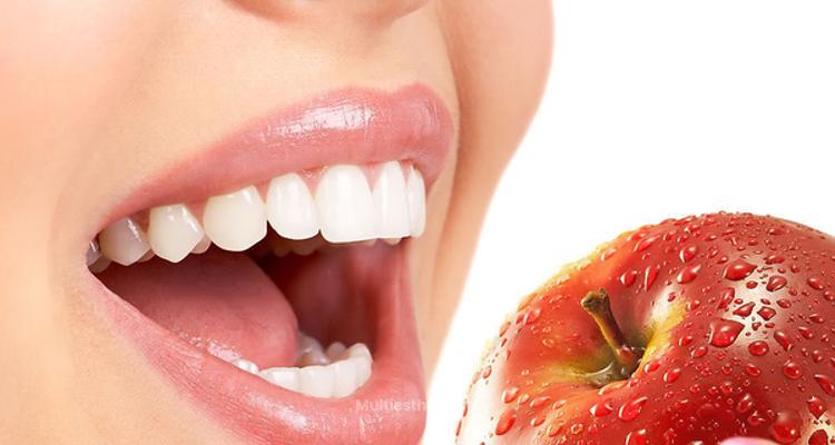 Les meilleures techniques de blanchiment dentaire