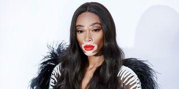 Le vitiligo représenté dans la mode