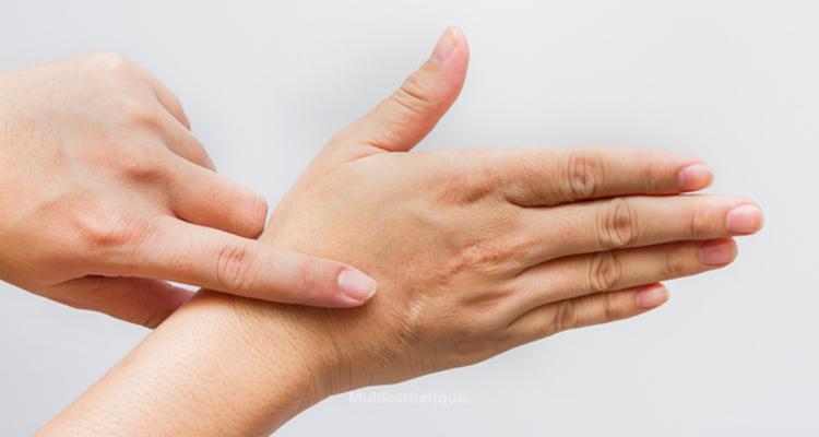 Traitement des cicatrices hypertrophiques