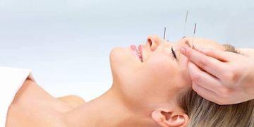 Lifting par acupuncture pour un rajeunissement naturel du visage