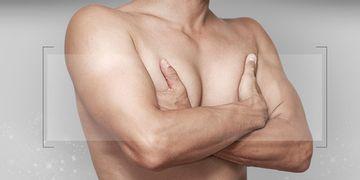 Gynécomastie : questions fréquentes