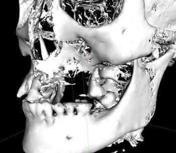 Implants dentaires : élévation du sinus maxillaire pour compenser le manque d'os