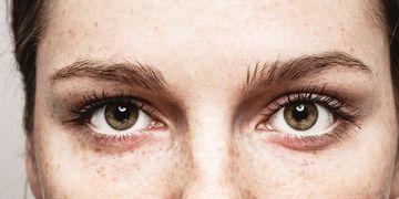 Quels sont les traitements du xanthélasma ?