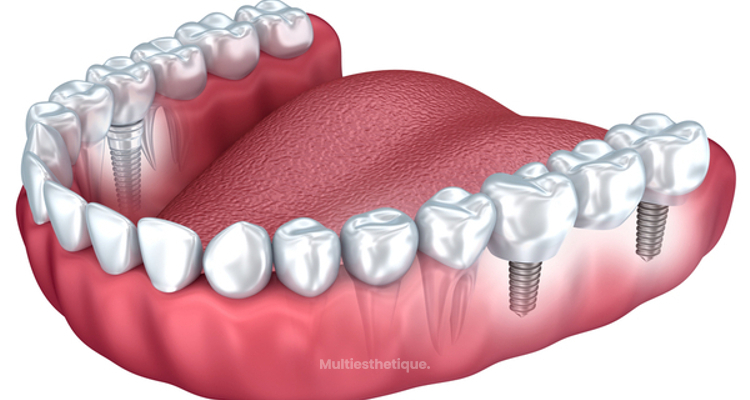 Avantages de la prothèse dentaire fixe de zirconium