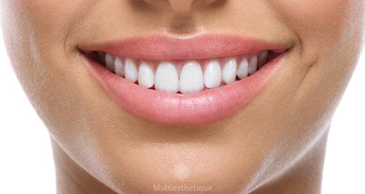 Tout savoir sur la prothèse dentaire fixe