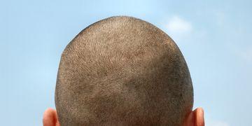 Micropigmentation du cuir chevelu et des zones pileuses