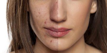 ClearLight, une réponse rapide pour le traitement de l'acné