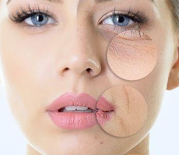 Rajeunissement facial grâce à la rhytidectomie