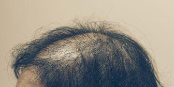Nouveauté en dermopigmentation capillaire