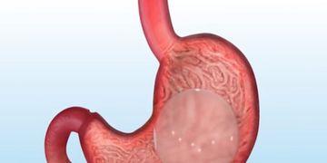 Ce que vous devez savoir sur le ballon intragastrique
