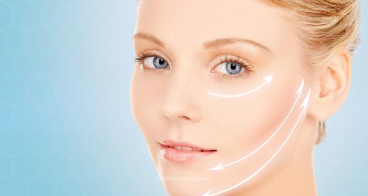Le PAVE-Lift, un nouveau traitement de rajeunissement facial