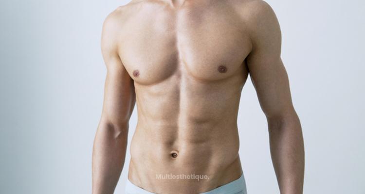 Causes, traitements et post-opératoire de la gynécomastie