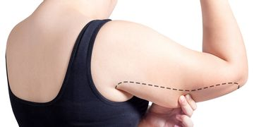 La liposuccion des bras est-elle aussi efficace que la brachioplastie ?