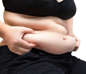 Chirurgie post-bariatrique pour éliminer l'excès de peau après une perte de poids