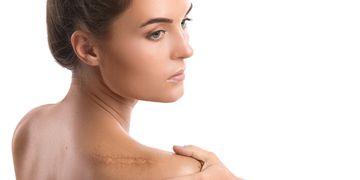 Cellules mères et PRP, des traitements efficaces contre les cicatrices