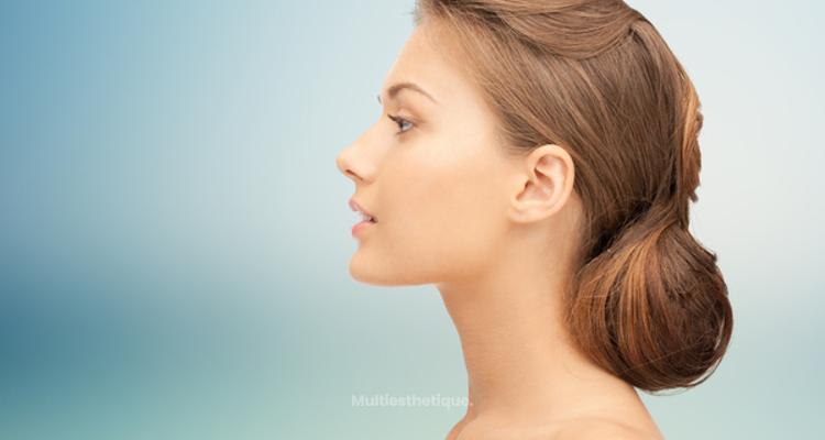 Qu'est-ce que la profiloplastie esthétique ?