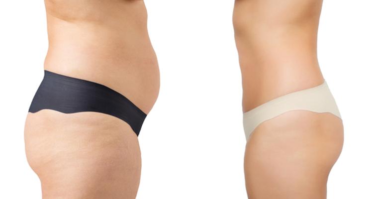 Vaser Lipo : la liposuccion par ultrasons