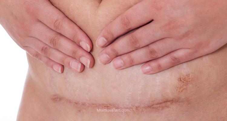 Les soins à apporter à une cicatrice de césarienne