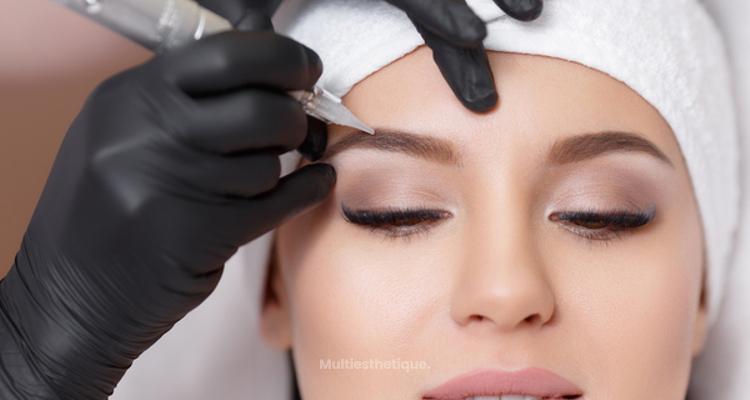Qu'est-ce que la micropigmentation et à quoi sert-elle ?