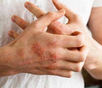Quels sont les différents types de dermatite et comment les soigner ?