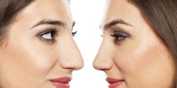 Rhinoplastie ultrasonique : la dernière innovation dans le domaine de la chirurgie du nez
