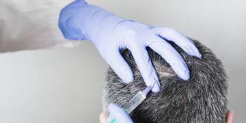 Greffe de cheveux : limites, effets secondaires et solutions