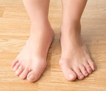 Secret Bridge : une nouvelle technique pour soigner les oignons de pieds