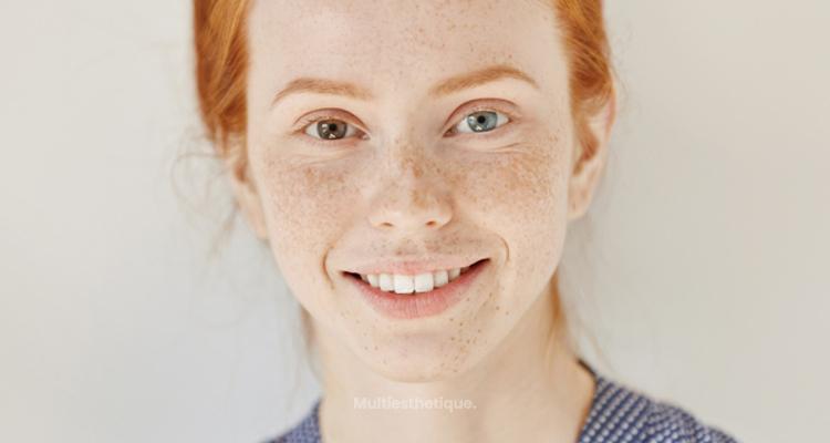 Les meilleures méthodes pour éliminer les taches sur la peau