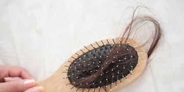 La chute de cheveux chez la femme