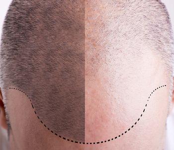 Les implants de cheveux étape par étape